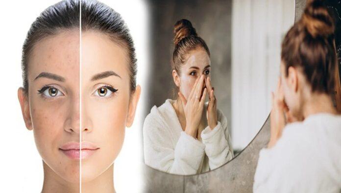 چہرے کی کالی اور خشک جلد